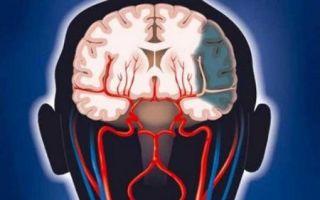 Причины, симптомы, лечение и последствия ишемического инсульта
