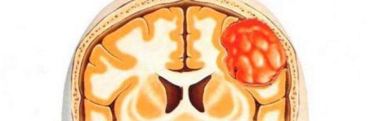 Симптомы, лечение и прогноз менингиомы головного мозга