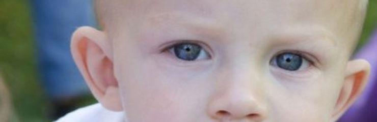 Гидроцефалия (водянка) головного мозга у детей