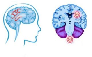 Симптомы и методы лечения демиелинизирующего заболевания головного мозга