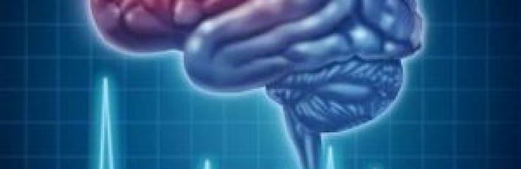 Все что нужно знать о профилактике инсульта