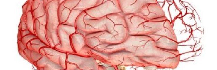 Все о чистке сосудов головного мозга