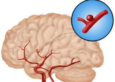 Аневризма головного мозга симптомы и лечение