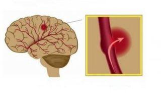 Симптомы, лечение и последствия геморрагического инсульта