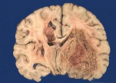 Метастазы в головном мозге — прогноз жизни и есть ли шанс?