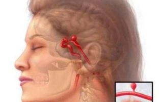 Последствия, признаки и методы лечения субарахноидального кровоизлияния головного мозга