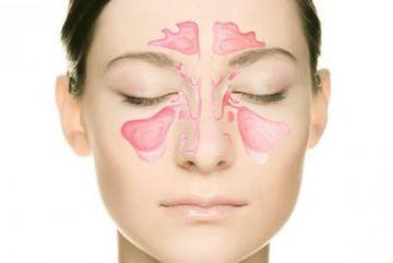 Как снять головную боль при гайморите?