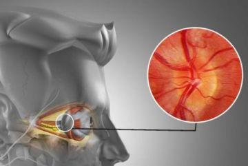 Симптомы и лечение неврита зрительного нерва