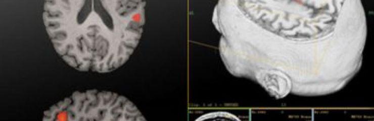 Что лучше и чем отличаются КТ головного мозга от МРТ головного мозга?