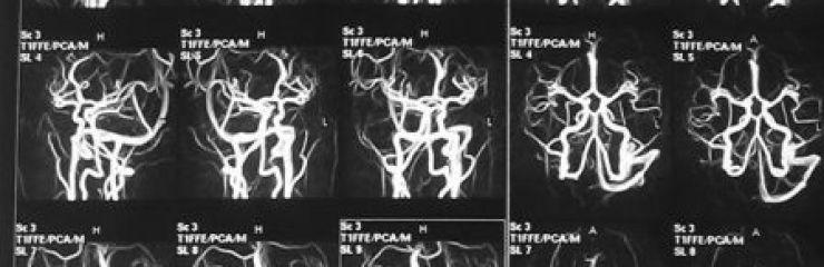 Что может показать МРТ сосудов головного мозга?