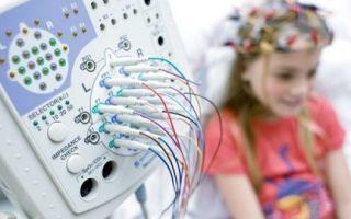 Все о процедуре ЭЭГ (электроэнцефалография) головного мозга у детей