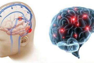 Симптомы и лечение повышенного внутричерепного давления
