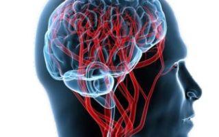 Чем грозит цереброваскулярная болезнь?
