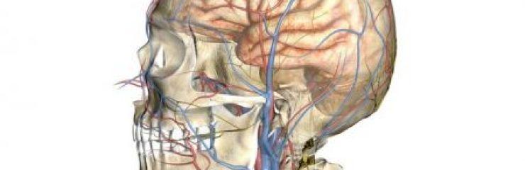 Что такое церебральная ангиодистония сосудов головного мозга?