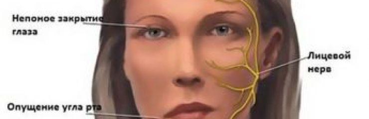 Симптомы и лечение неврита (воспаления) лицевого нерва