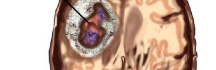 Симптомы и методы лечения глиомы головного мозга