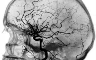 Что такое ангиография сосудов головного мозга?