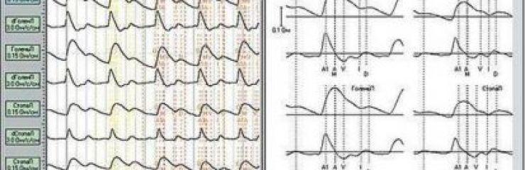 Что это такое РЭГ (реоэнцефалография) головного мозга: показатели нормы и расшифровка результатов