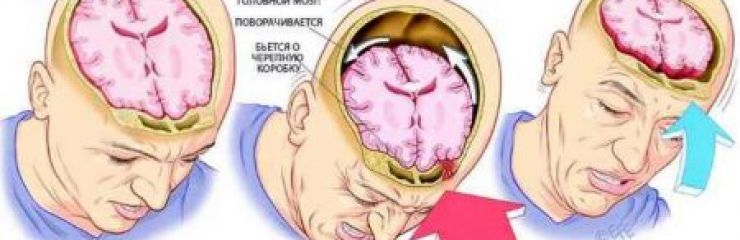 Симптомы и лечение сотрясения головного мозга