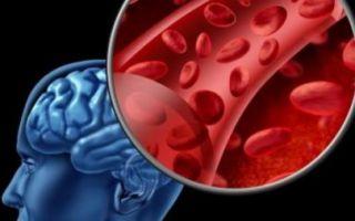 Что такое хроническая ишемия головного мозга?