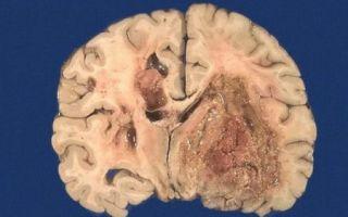 Прогноз жизни при метастазах в головном мозге: есть ли шанс?