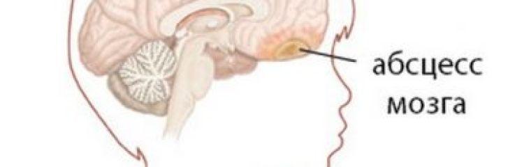 Симптомы и методы лечения абсцесса головного мозга