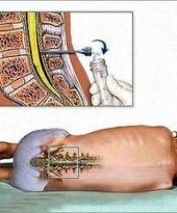 Для чего и как проводится люмбальная пункция