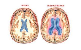 Симптомы и лечение гидроцефалии головного мозга (водянки) у взрослых