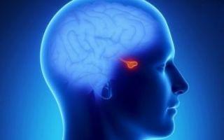 Причины, симптомы и лечение микроаденомы гипофиза