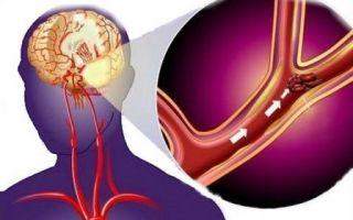 Первые признаки микроинсульта и методы лечения
