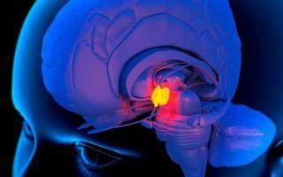 Что такое пустое турецкое седло в головном мозге?