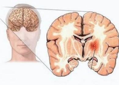 Какие симптомы у опухоли головного мозга на ранних и поздних стадиях?