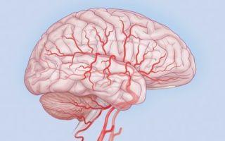 Что такое цефалгия?