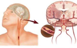 Симптомы и лечение транзиторной ишемической атаки