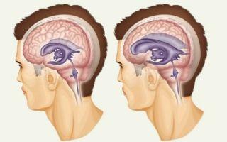 Что такое наружная гидроцефалия головного мозга у взрослых и детей?