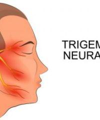 Причины, симптомы и лечение невралгии тройничного нерва