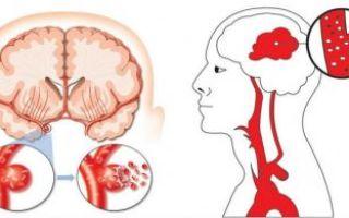 Симптомы и последствия кровоизлияния в мозг