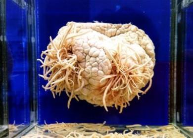 Какие паразиты могут оказаться в головном мозге человека?