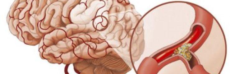 Симптомы и лечение атеросклероза сосудов головного мозга