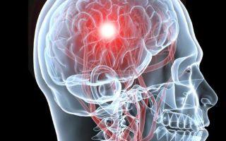 Может ли головная боль стать причиной инсульта?