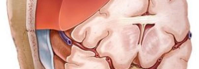 Виды гематом головного мозга (субдуральная, эпидуральная) и методы их лечения