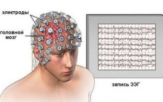 Все о проведении ЭЭГ (энцефалограмма) головного мозга