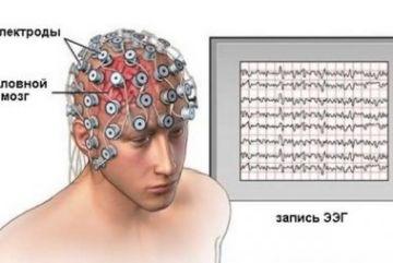 Все о проведении ЭЭГ (энцефалограммы) головного мозга