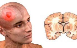 Симптомы и причины возникновения глиобластомы головного мозга