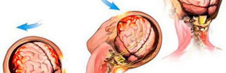 Что такое контузия головного мозга?