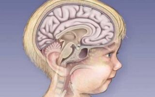Все о симптомах менингита у детей
