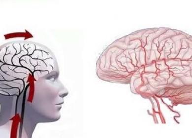 Симптомы и лечение дисциркуляторной энцефалопатии
