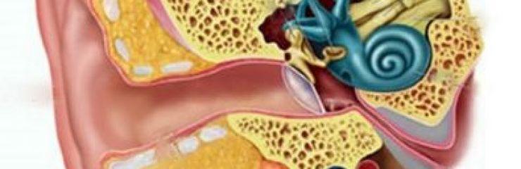 Симптомы и методы лечения вестибулярного нейронита