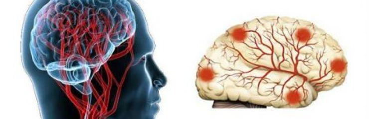 Все о дисциркуляторной энцефалопатии 2 степени