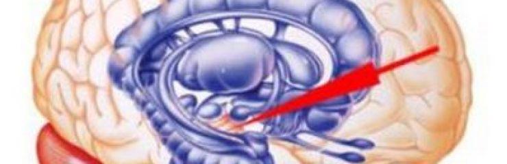 Насколько опасна киста прозрачной перегородки головного мозга?